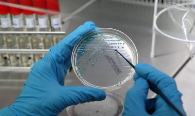 Risultati immagini per tubercolosi
